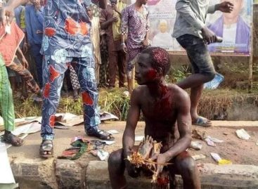 Suspected ritualist caught with human parts beaten mercilessly